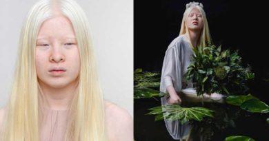 Xueli Abbing modelo de la revista Vogue