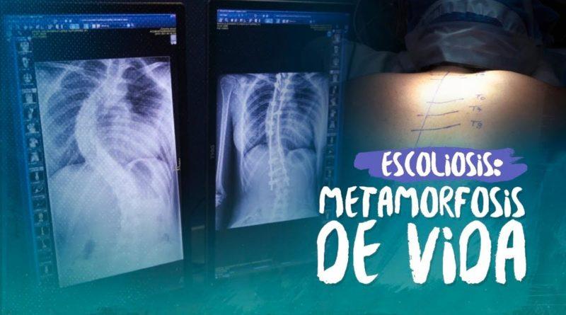 Nicaragua se convierte en el primer país en realizar cirugías de escoliosis gratis
